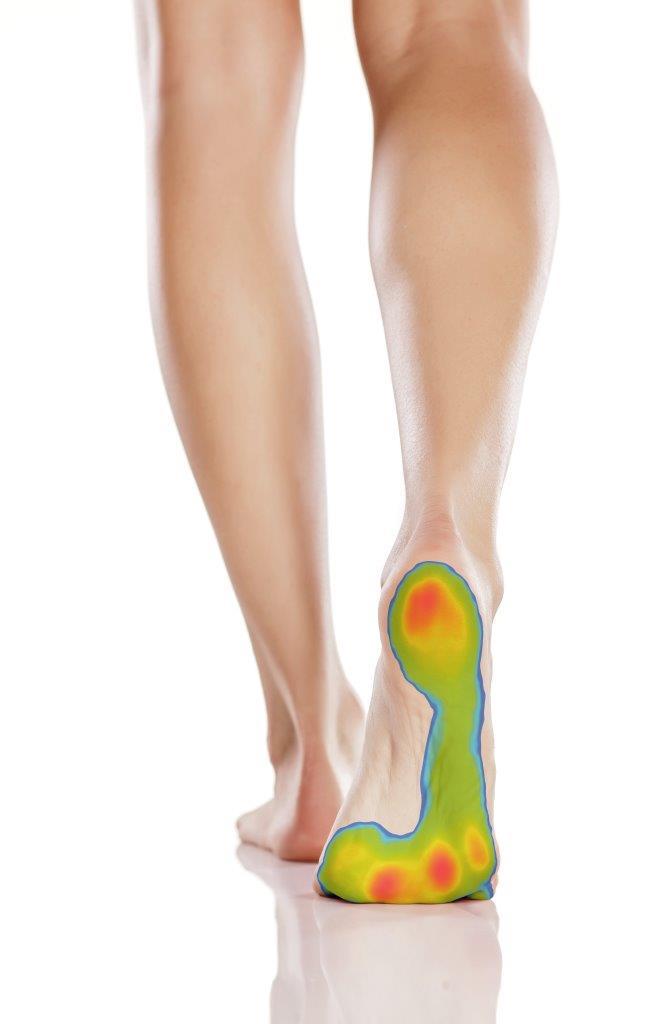 Rs Scan Walking Pressure Image